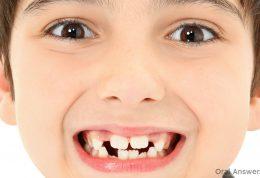 چرا دندان لق می شود؟