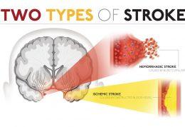 راهنمایی هایی درباره سکته مغزی