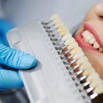 روکش دندان دکتر بهروزی