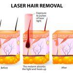 دکتر اکبری: لیزر ناحیه تناسلی زنانه خوب یا بد؟