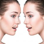 دکتر سهرابی: سن مناسب عمل جراحی زیبایی بینی چه زمانی است؟