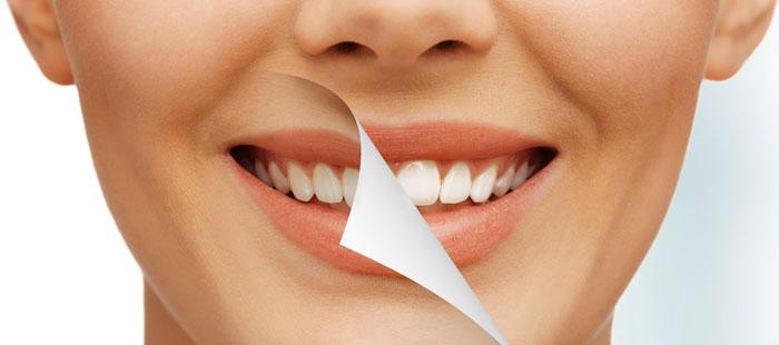 هزینه سفید کردن دندان سفید کردن دندان در خانه سفید کردن دندان سفید کردن با لیزر زیبایی دندان