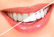 بلیچینگ و سفید کردن دندان با لیزر چگونه انجام می شود؟