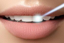 بلیچینگ و سفید کردن دندان در خانه چگونه انجام می شود؟