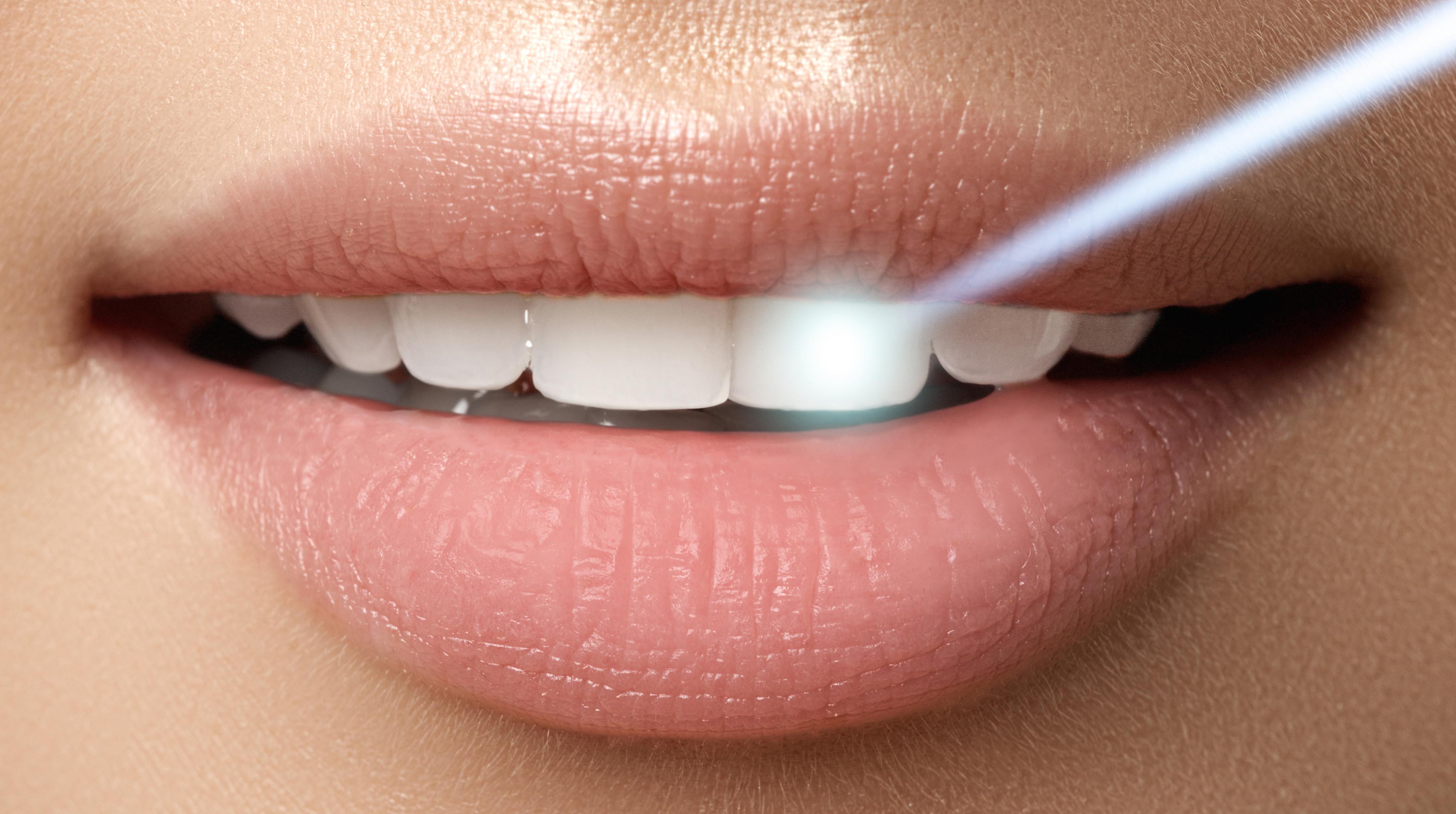 سفید کردن دندان در خانه سفید کردن دندان بلیچینگ دندان در خانه بلیچینگ در منزل