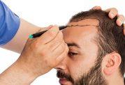 جدیدترین شیوه کاشت مو و ابرو در کلینیک تندیس