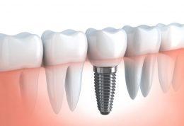 دکتر ادیب: مزیت های ایمپلنت دندان
