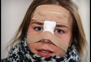 دکتر شبنم شادابی: بررسی نحوه شستن بینی بعد از عمل زیبایی