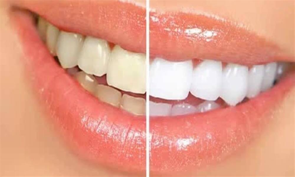 سفیدی دندان سفیدشدن دندان سفید کننده دندان سبزیجات چلیپایی دندان هایی سفید توت فرنگی