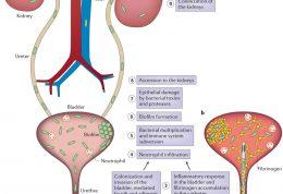 درمان های متفاوت برای عفونت مجاری ادراری در خردسالان