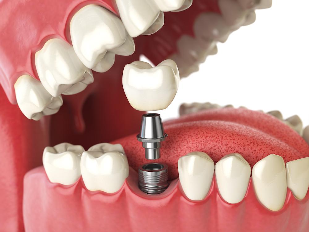 رده سنی مناسب برای ایمپلنت کردن دندان