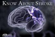 تشخیص سکته مغزی در مراحل اولیه