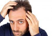 کاشت مو و ابرو برای چه کسانی مناسب است؟