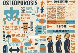 راهبردهای ساده پیشگیری از پوکی استخوان
