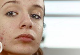 درمان کک و مک های پوستی