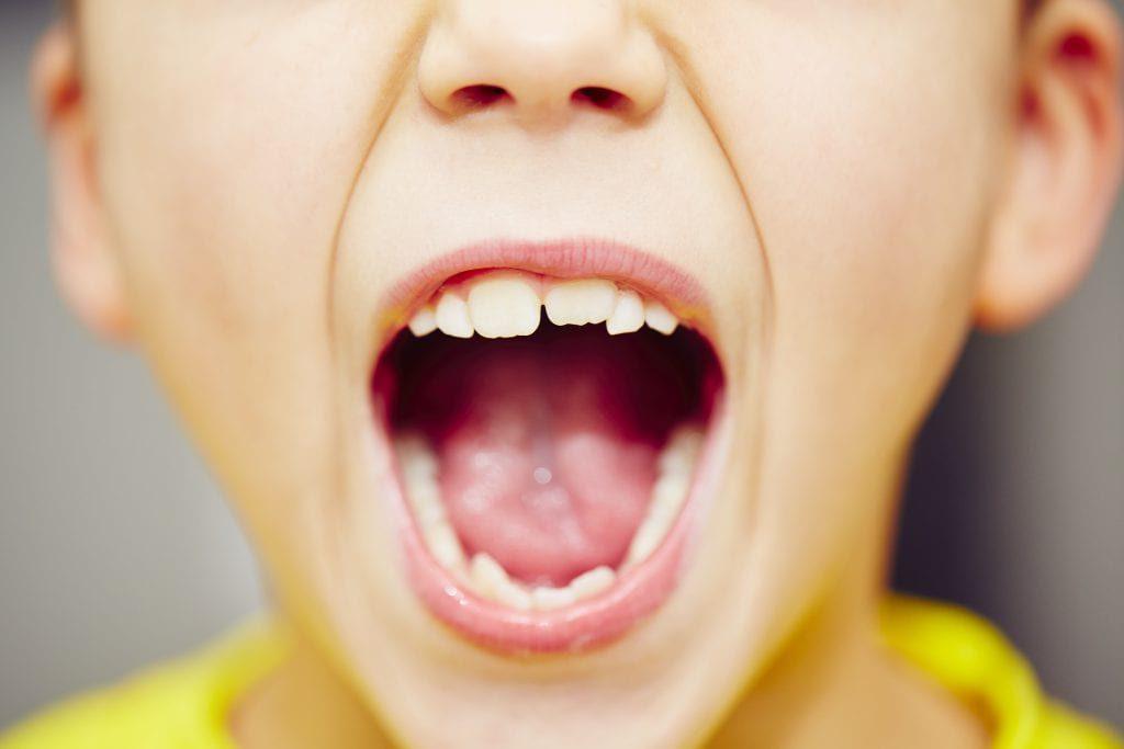 تاثیر شیرینی جات بر سلامت دهان و دندان