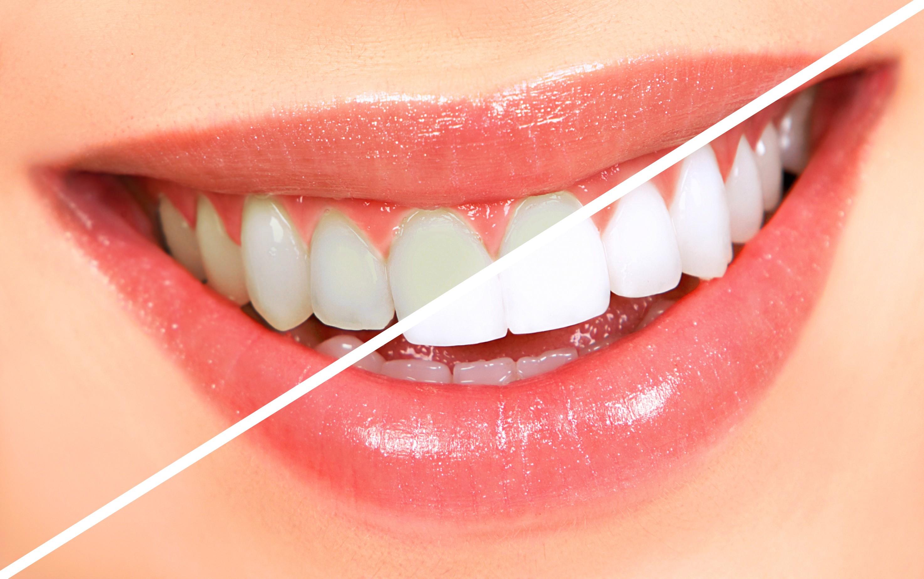 روش های موثر برای سفید شدن دندان