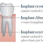 انواع ایمپلنت دندانپزشکی نارمک