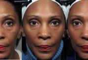 معرفی جدیدترین فناوری جوانسازی صورت