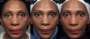 صورتتان را ورزش دهید 3 سال جوانتر شوید