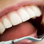 ترمیم دندان دکتر آزادمنش
