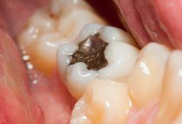 نحوه تهیه انواع مواد دندانی