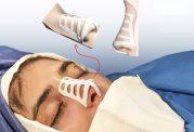 طراح طب: مزیت جراحی زیبایی بینی با قالب کنترلی