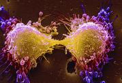 با مصرف این نان ها به سرطان کبد مبتلا خواهید شد!