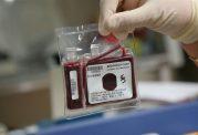 مزایای نگهداری از خون بند ناف نوزاد