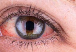 سندرم اسجوگرن Sjogren علائم،خطرات،درمان و خودمراقبتی