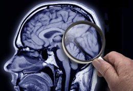 درمان زوال عقل با روشی نوین