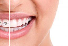 دکتر آزادمنش: ارتودنسی چگونه باعث اصلاح نافرمی دندان ها می شود؟