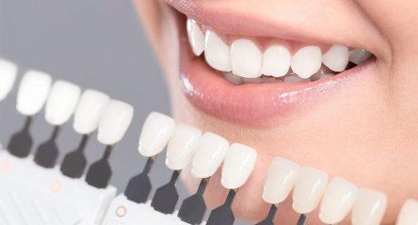 کامپوزیت دندان دندانپزشکی نارمک