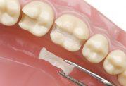 دکتر منیره تهرانی: ترمیم دندان و مراقبت های بعد از آن