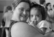 سندرم داون : علائم، علل، تشخیص و درمان در کودکان