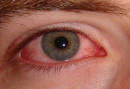 حقایقی درباره خشکی چشم