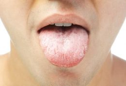 خشکی دهان و روش های درمان آن