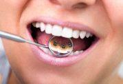 دکتر شاهین شادالوئی: ارتودنسی از پشت دندان چیست؟