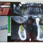 دقیق قرار دادن ایمپلنت با استفاده از هدایت پویا یا نویگیشن دکتر ادیب