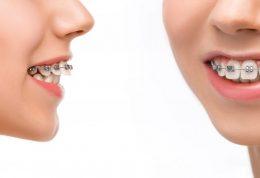 دکتر منیره تهرانی: مرتب کردن ظاهر دندان ها با استفاده از ارتودنسی