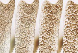 بروز پوکی استخوان با برخی عوامل جانبی