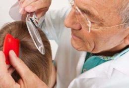 درمان های مختلف برای شپش سر