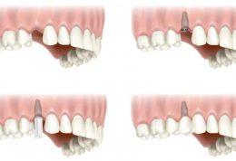 سوالات رایج در مورد ایمپلنت دندانپزشکی نارمک