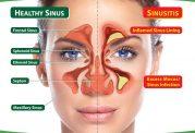 دکتر میقانی: آندوسكوپی بینی و سینوس جهت درمان سینوزیت