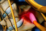 هشدارهای بدن برای تنگی در کانال نخاعی کمری