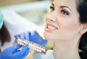 مزیت های کامپوزیت دندانپزشکی نارمک