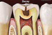 4 توصیه برای پیشگیری از پوسیدگی دندان
