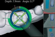 دکتر ادیب: نگاهی نزدیک به ایمپلنت های دندانی از طریق نویگیشن سه بعدی