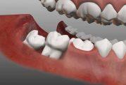 چرا باید دندان عقل نیمه نهفته را جراحی کنیم؟