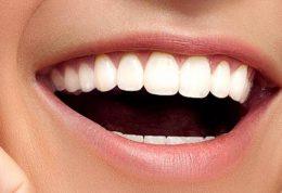 اطلاعاتی در مورد روکش دندان